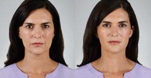 Juvéderm antes y después