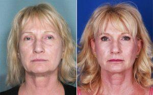 Mini estiramiento facial antes y después de los resultados